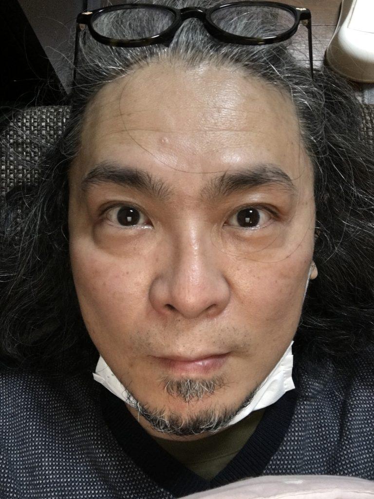 山田の顔、ケトン体